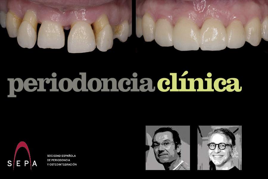 Caso clínico de los doctores Enrile y Buitrago en la revista Periodoncia Clínica