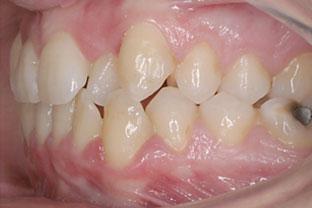 Before-Lateral izquierdo